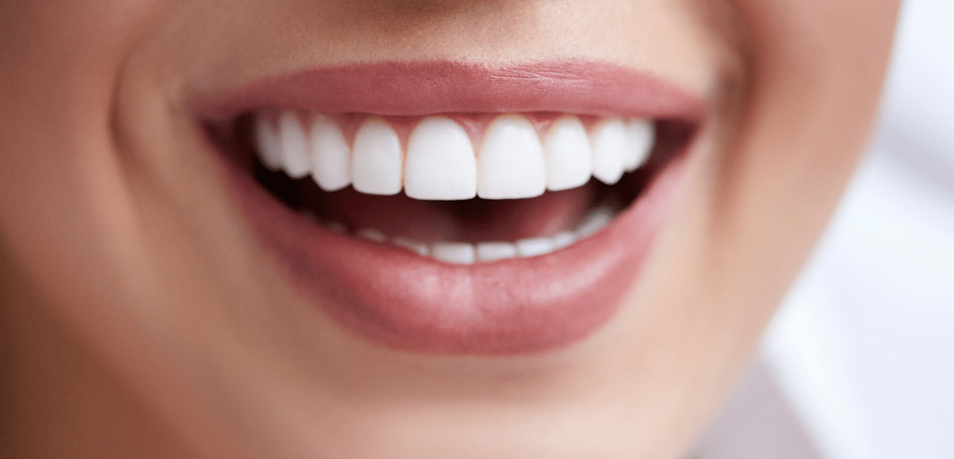 How to choose the best veneers for your face shape