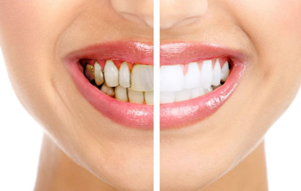 Does Getting Your Teeth Cleaned Hurt?